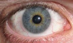diplopia pic of eye